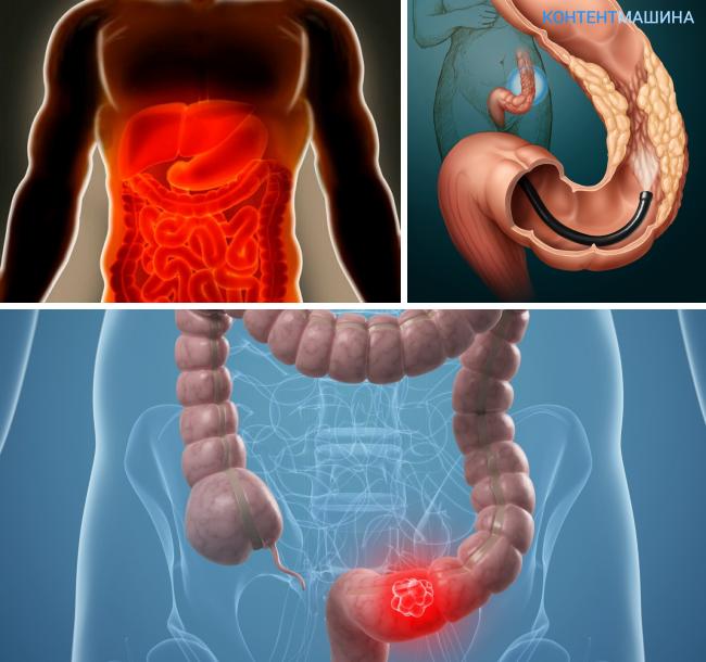 Атония кишечника симптомы и лечение