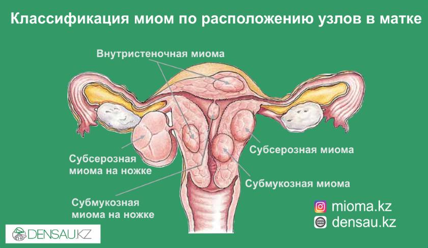 Симптомы и первые признаки миомы матки на ранних стадиях у женщин