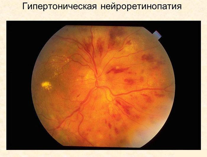 Ангиопатия сетчатки глаз: симптомы, причины, лечение у взрослых