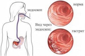 Фиброгастроскопия (фгс): показания, подготовка, проведение
