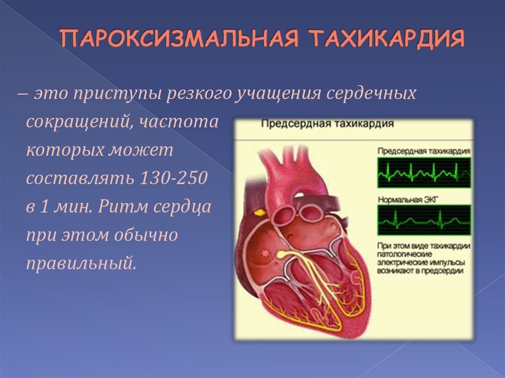 Тахикардия. причины, симптомы, признаки, диагностика и лечение патологии