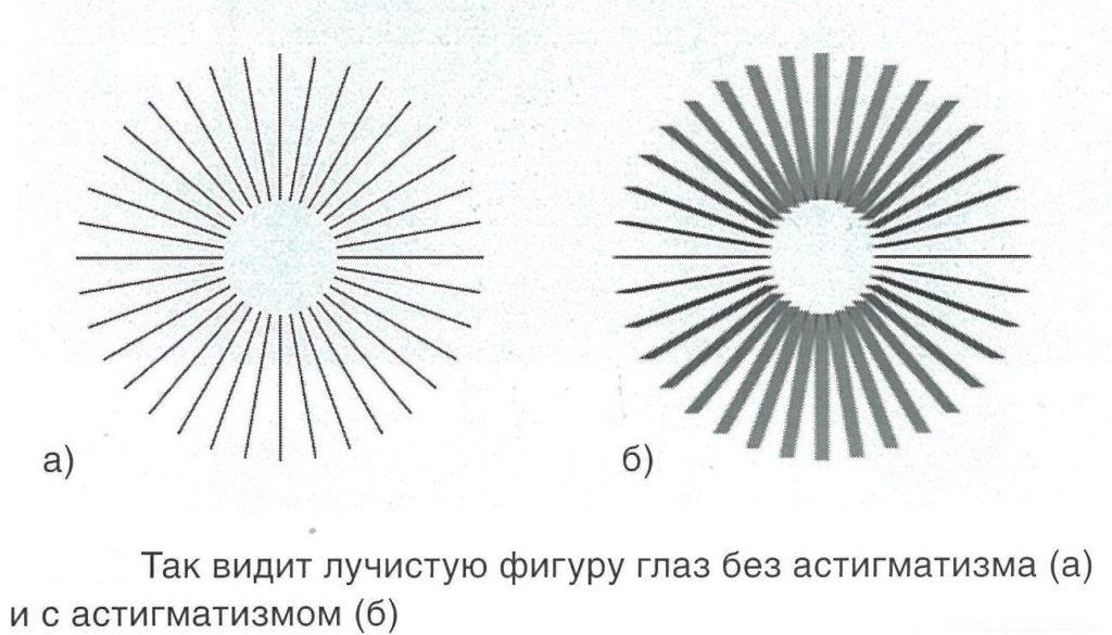 Миопический астигматизм: что это такое, как лечить, причины, симптомы, виды (сложный, простой)