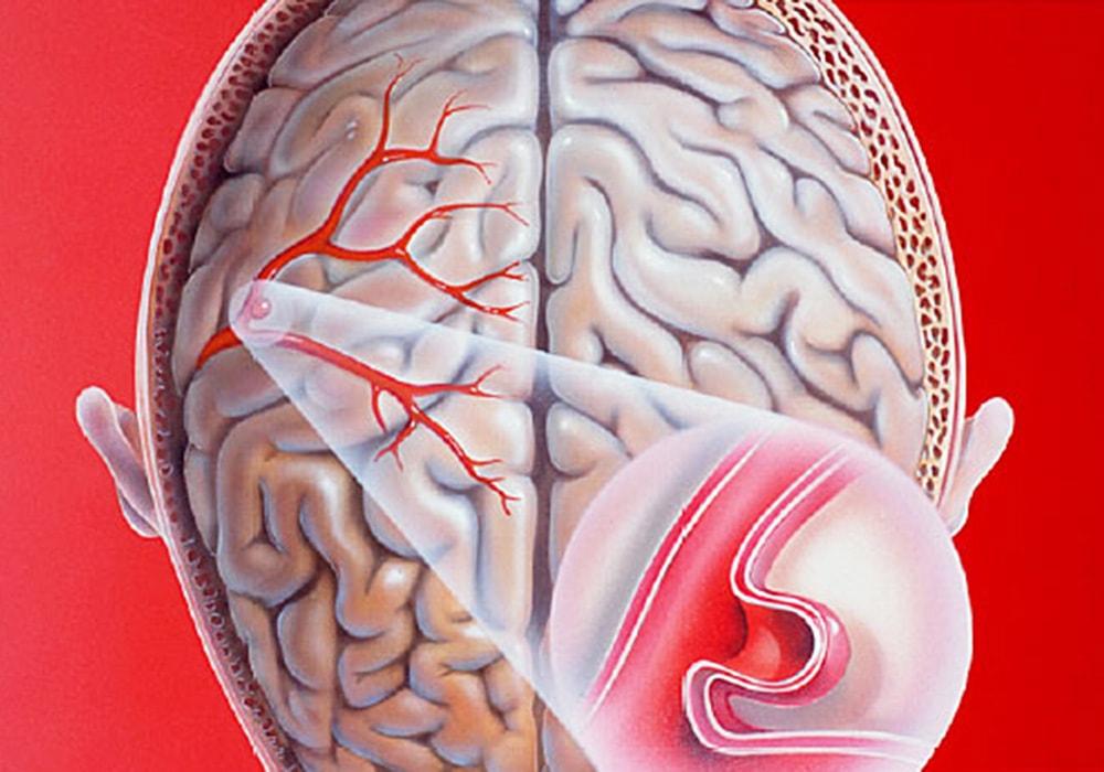 Аневризма сосудов головного мозга – симптомы и причины, варианты лечения, последствия разрыва и прогноз