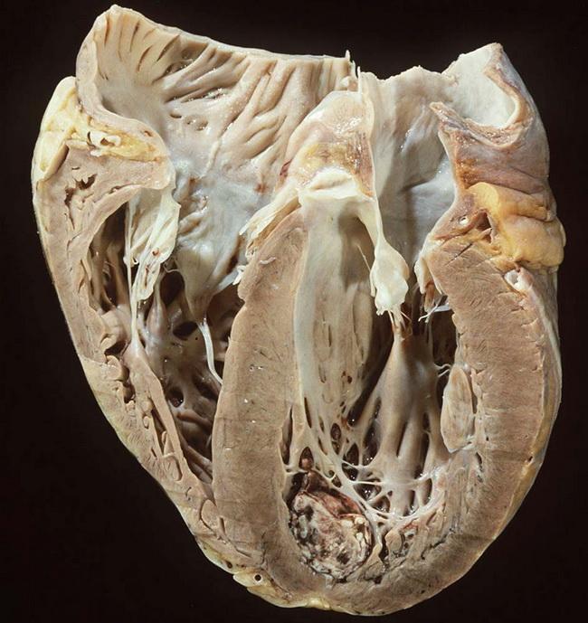 Дилатационная кардиомиопатия