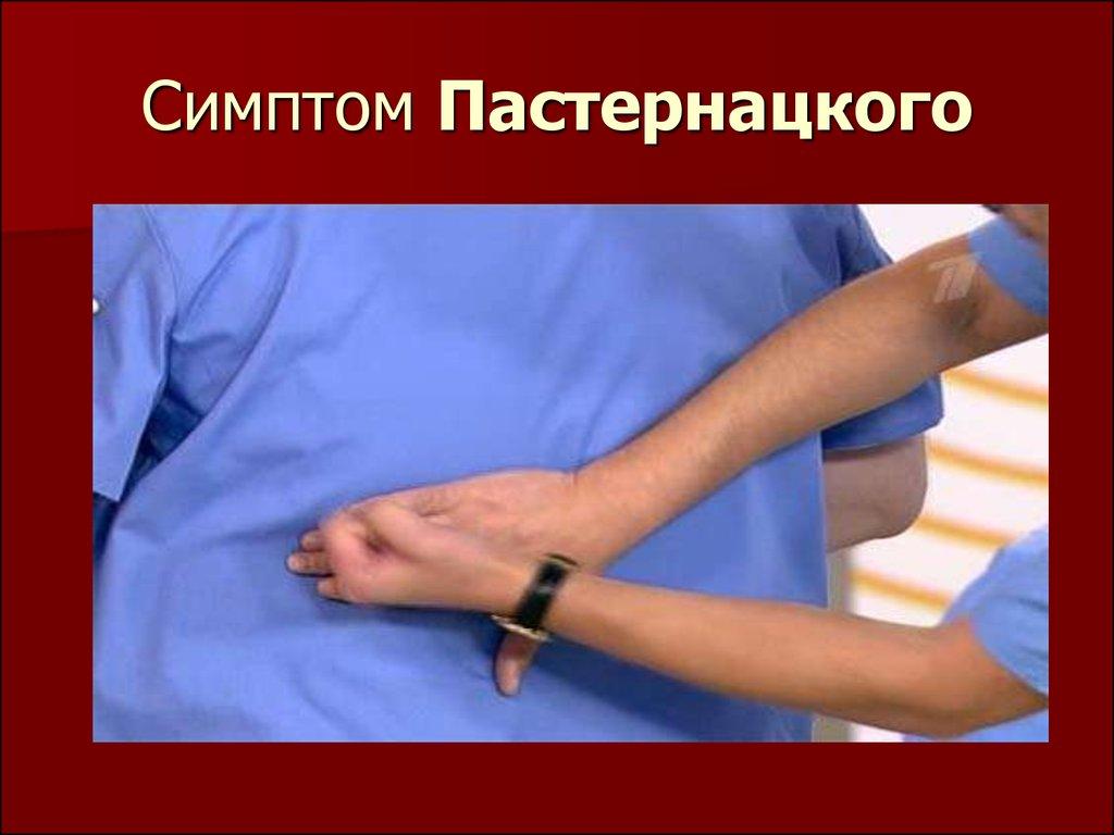 Симптом пастернацкого: факторы, диагностика, терапия - сила и здоровье
