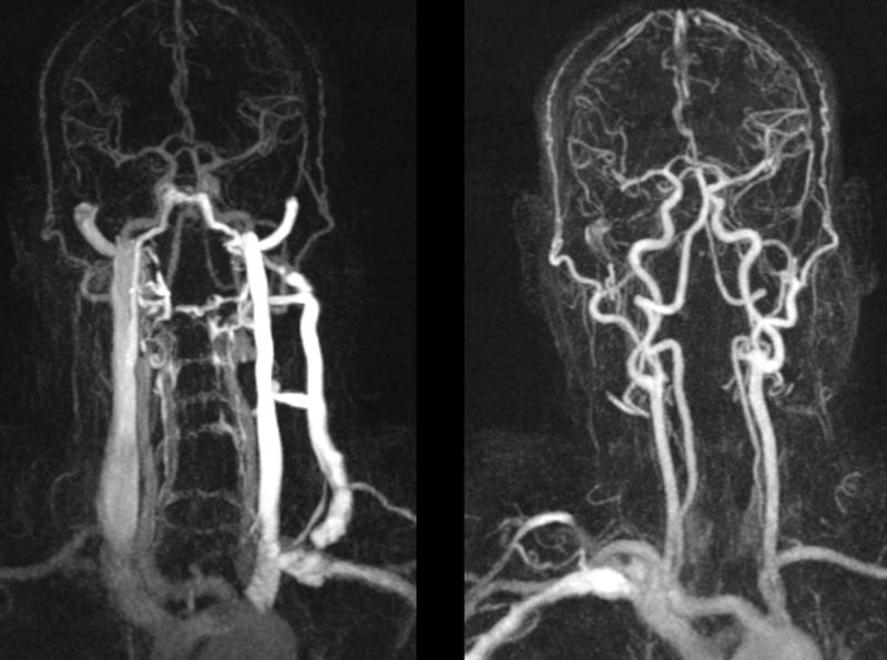 Как проводится транскраниальная допплерография (ткдг) сосудов головного мозга и что может показать
