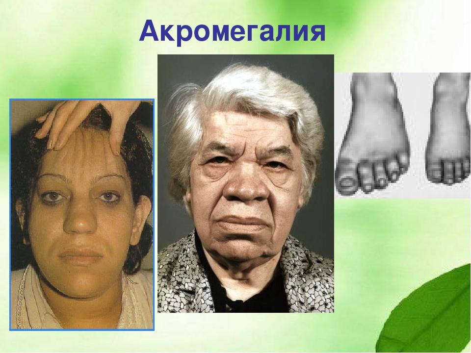 Акромегалия: причины, симптомы, диагностика и лечение