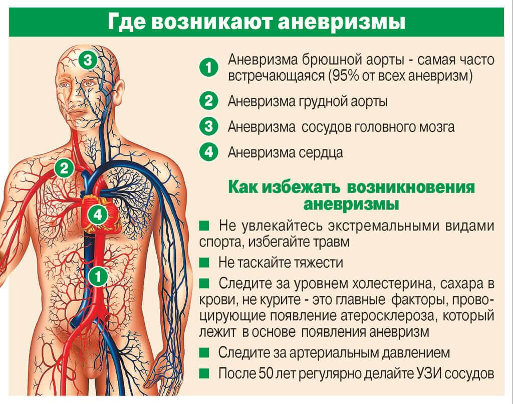 Аневризма головного мозга: последствия после операции