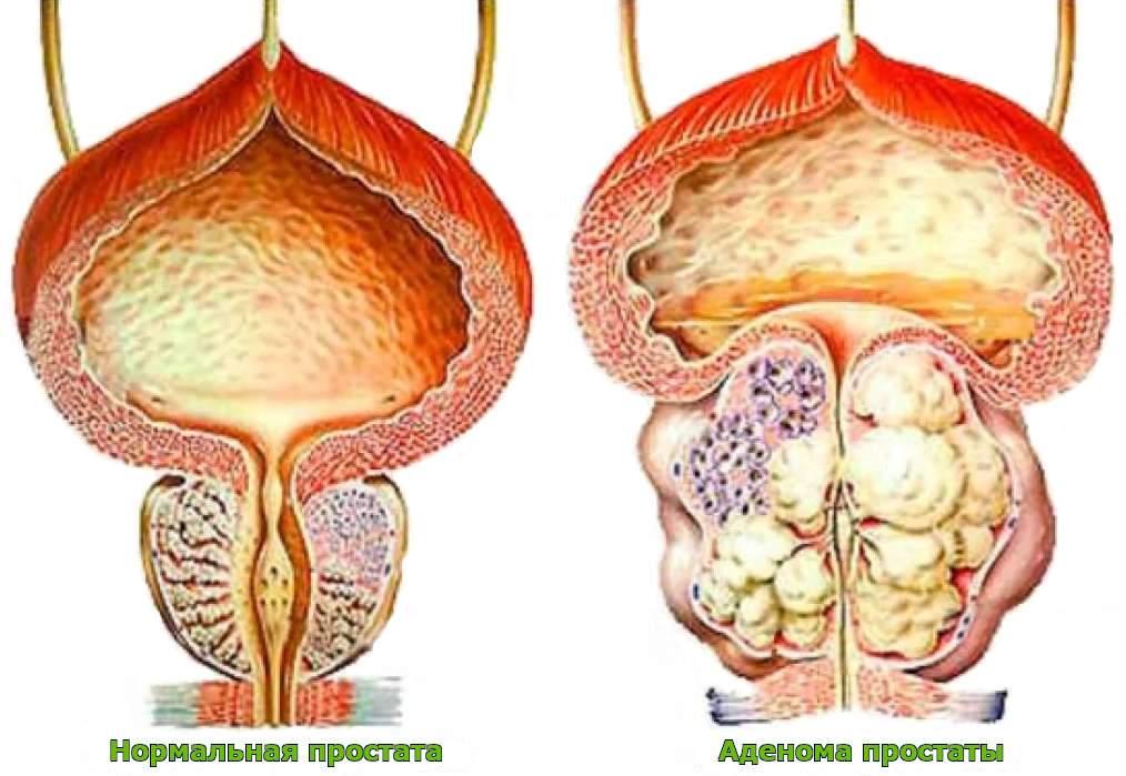 Лечение аденомы простаты народными средствами ????⚕️ самые эффективные препараты