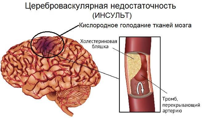 Цереброваскулярная болезнь (цвб) — что это такое?