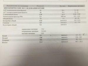 Анализ крови на аццп: что это норма и расшифровка | все о суставах и связках