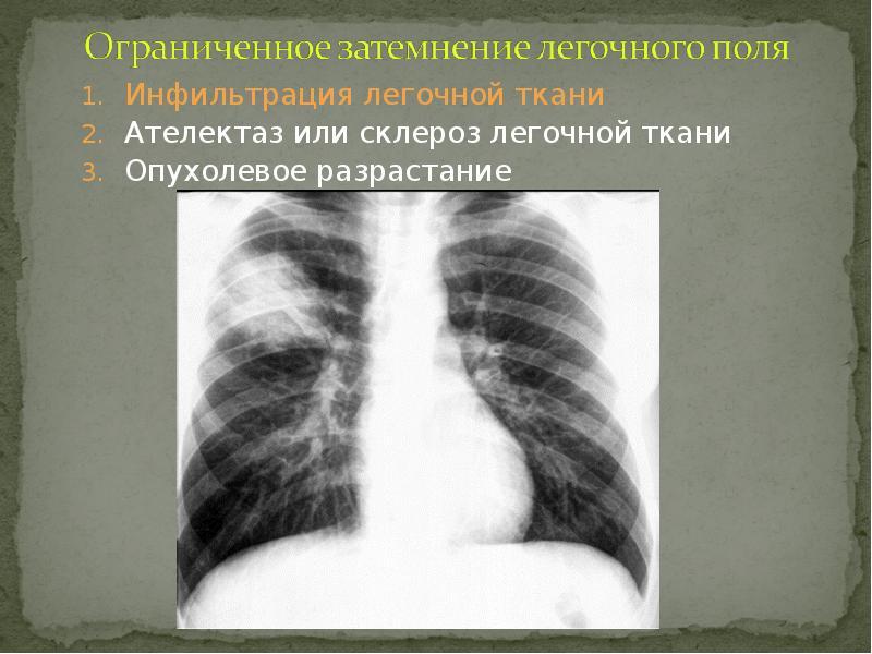 Что такое инфильтрация лёгочной ткани: признаки и симптомы инфильтрата в лёгких