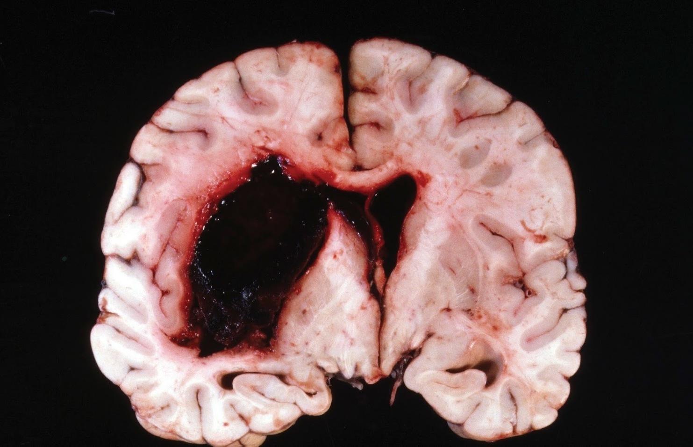 Геморрагический инсульт: последствия, сколько живут после геморрагического инсульта