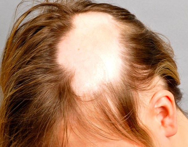 Алопеция у мужчин: виды и лечение. как лечить алопецию у мужчин?