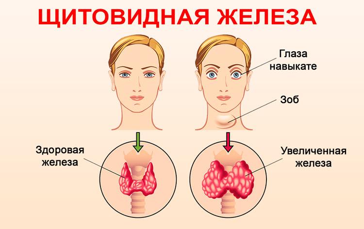 Сигналы организма: первые признаки заболеваний щитовидной железы