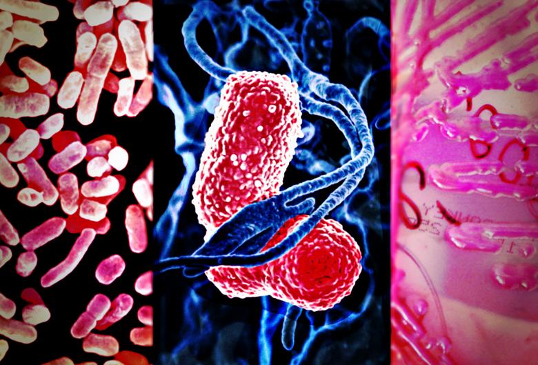 Клебсиелла окситока: что это такое, причины, симптомы и лечение