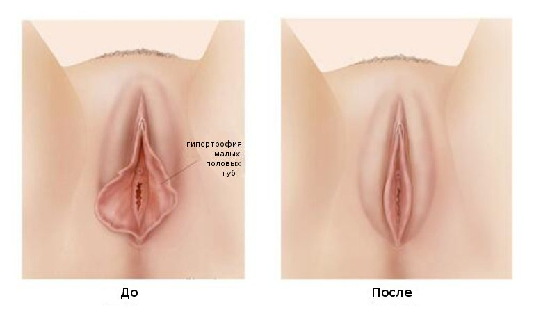 7 способов поддерживать ваши половые органы молодыми
