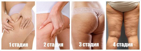 Основные причины появления целлюлита. почему появляется целлюлит у женщин