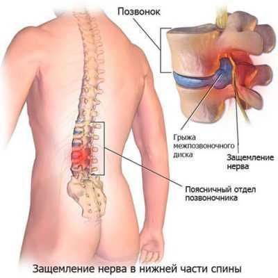 Люмбалгия хроническая вертеброгенная, лечение люмбалгии