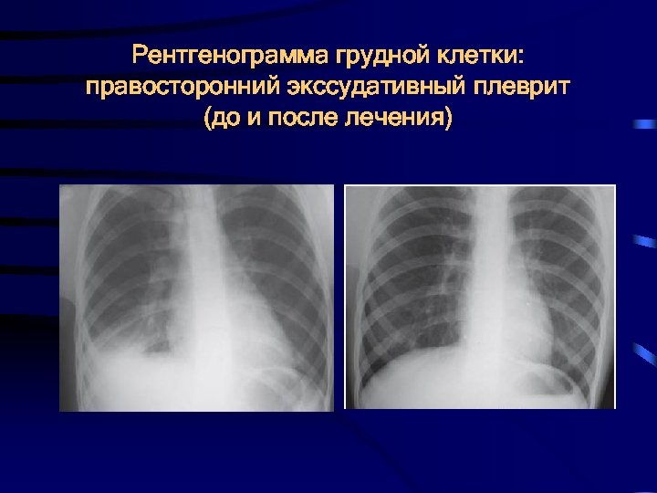 Гидроторакс. клиническая картина и диагностика гидроторакса