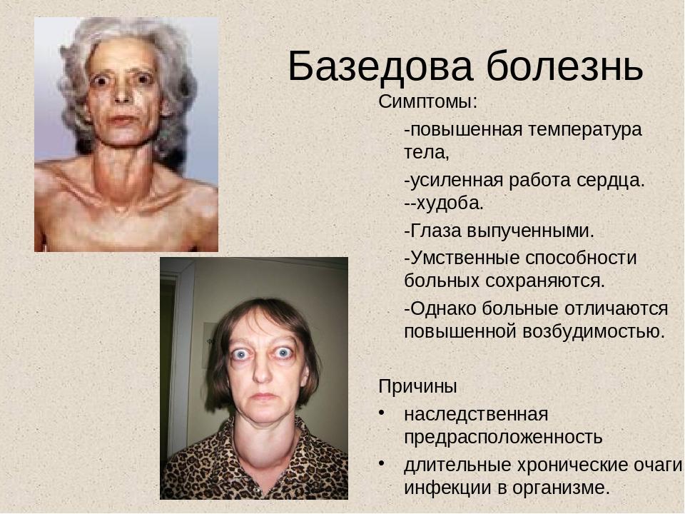Тиреотоксикоз: симптомы у женщин, уровень ттг, медикаментозный, последствия, питание, лечение щитовидной железы