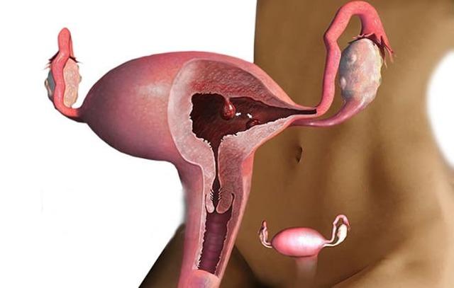 Полип эндометрия: причины, методы лечение и удаления полипа