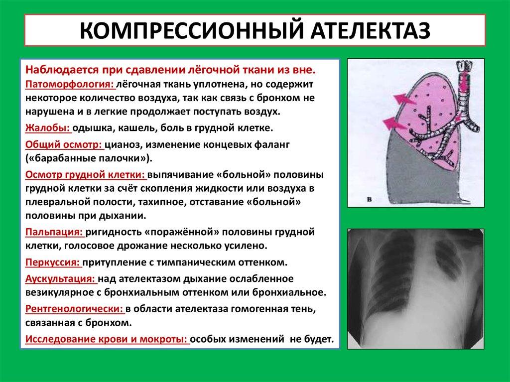 Ателектаз легких: причины, симптомы, лечение, ателектаз легких у детей