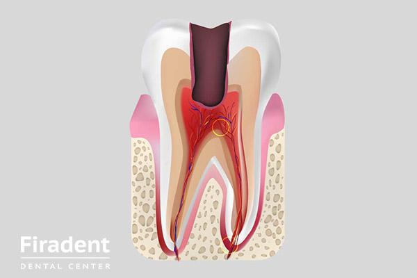 Пульпа – это важная часть зуба, ее состав, функции и заболевания