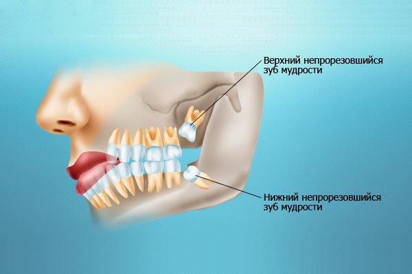 Семь проблем зубов мудрости - удалять или лечить?