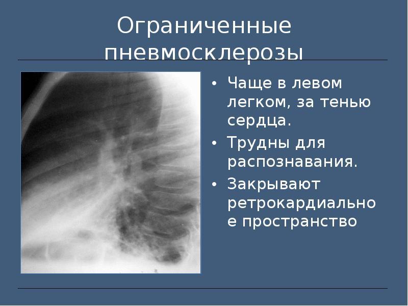 Фиброз легких лечение народными средствами | портал о народной медицине