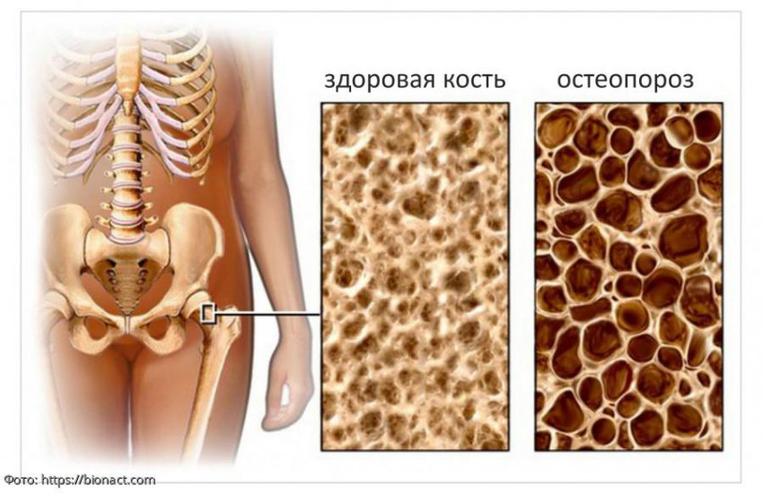 Остеопороз - симптомы и лечение, признаки, анализы