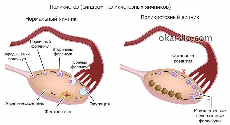 7 основных причин поликистоза яичников у женщин