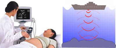 Что это - ультразвук? применение ультразвука в технике и медицине