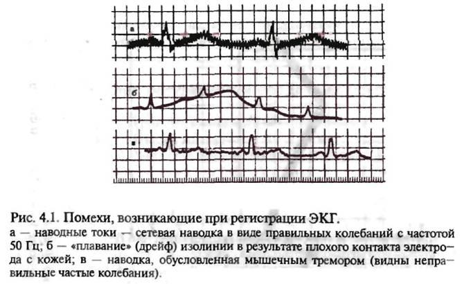Как расшифровать кардиограмму сердца