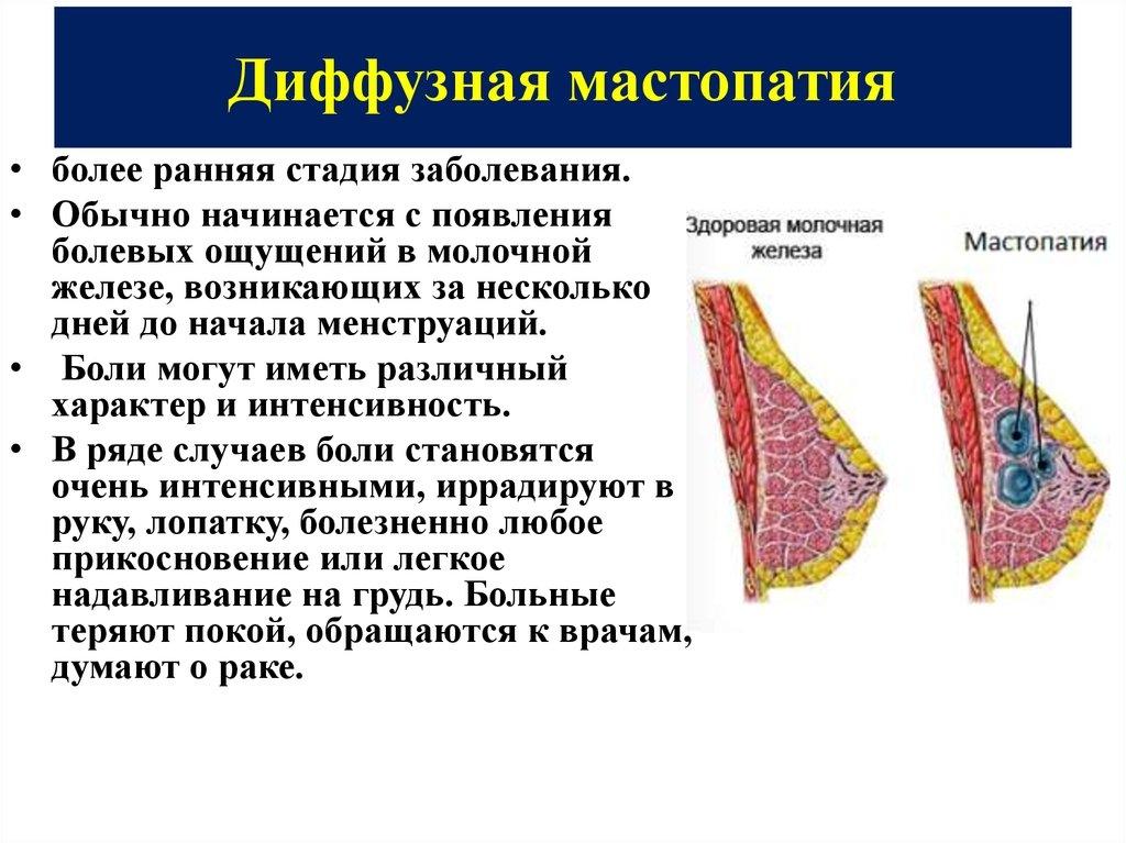 Фиброзно-кистозная мастопатия: симптомы, лечение, чем опасна, причины и диагностика