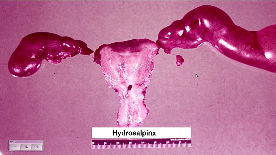 Гидросальпинкс: удалять ли маточную трубу? - проблемы с зачатием