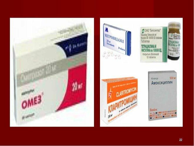 Язва желудка симптомы и проявление - диагностика и лечение