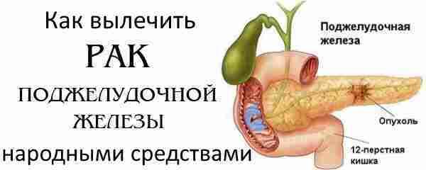 Как лечить липоматоз поджелудочной железы. народные рецепты, лекарства