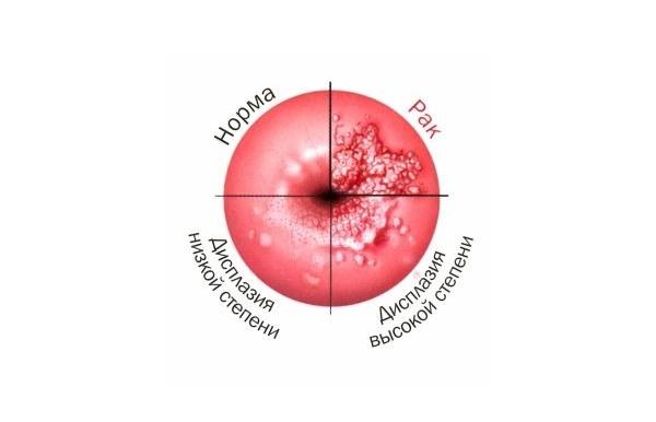 Как лечат дисплазию шейки матки 3 степени с помощью конизации