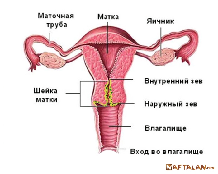 Параметрит: причины заболевания, основные симптомы, диагностика, признаки осложнений, лечение