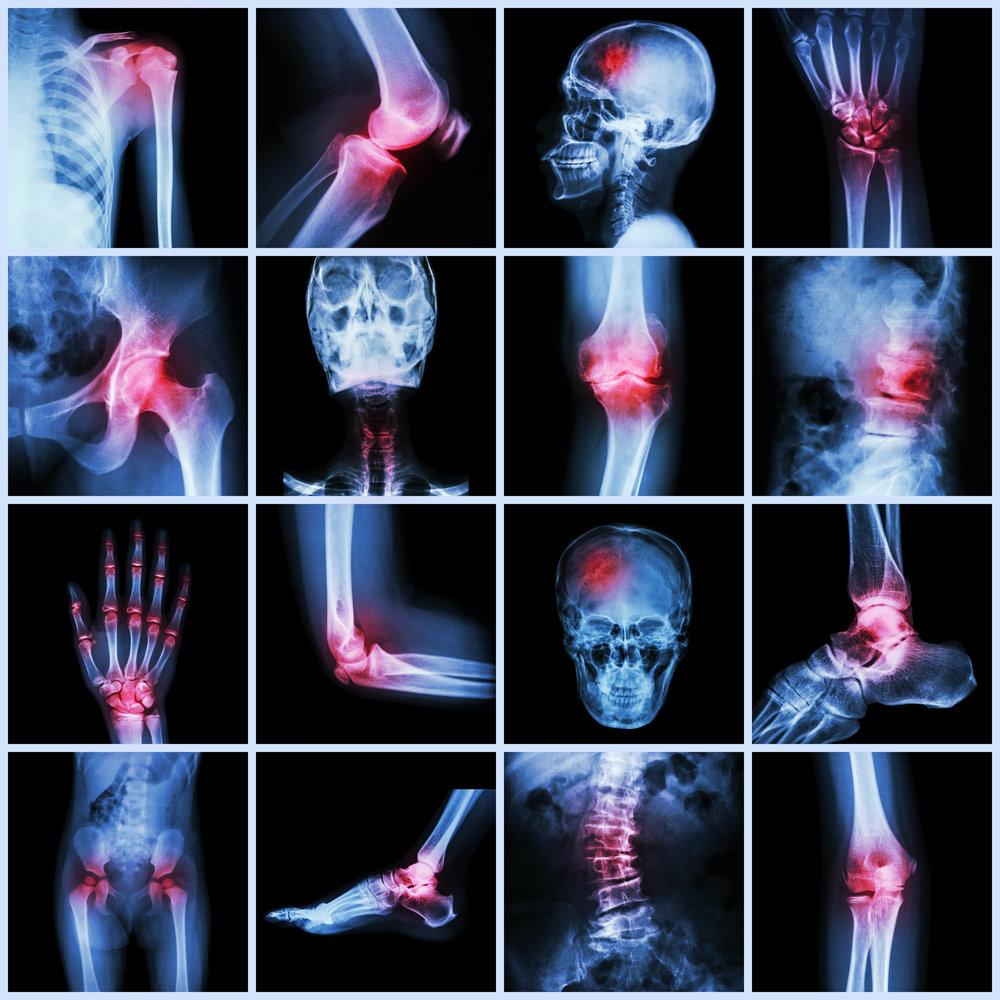 Сцинтиграфия костей скелета: как проводится и что нужно знать