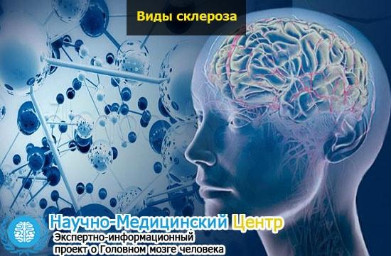 Киста в голове (мозга): симптомы и лечение патологии