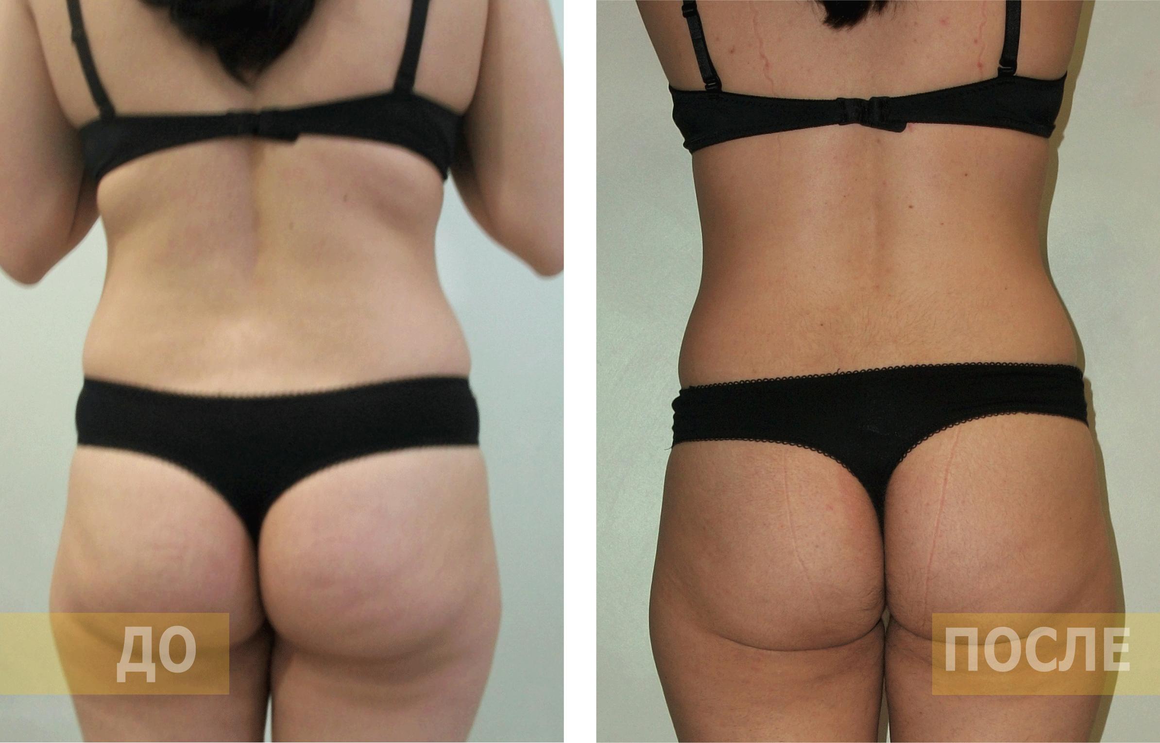Прессотерапия - отзывы и результаты, фото до и после