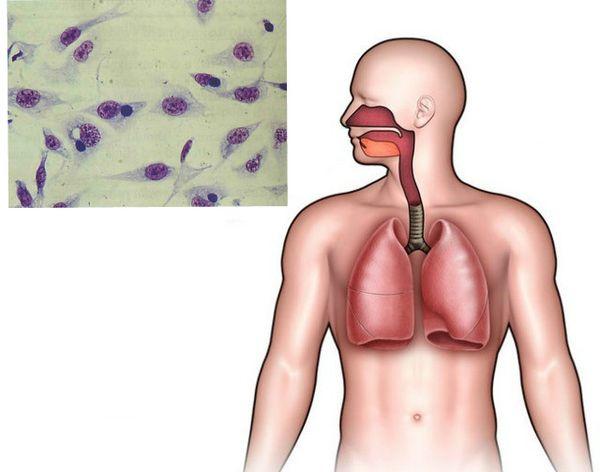 Хламидиоз: симптомы и лечение – напоправку