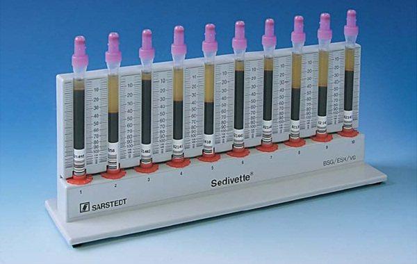 Соэ по методике вестергрена, преимущества и выявление заболеваний, причины повышения или снижения данного показателя