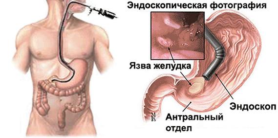 Эзофагогастродуоденоскопия (эгдс): что это такое, процедура с биопсией и без