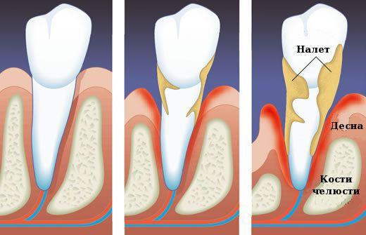 Пародонтоз – лечение стоматологами. как лечить пародонтоз в домашних условиях?