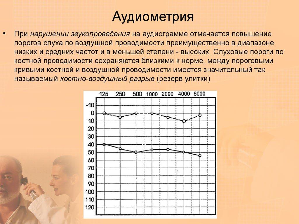 Тональная пороговая и надпороговая аудиометрия   диагностика слуха
