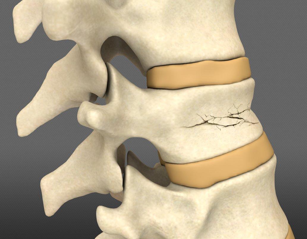 Компрессионный перелом позвоночника: что это, симптомы, степени, лечение и реабилитация