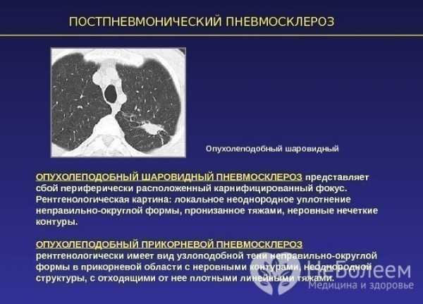Пневмосклероз легких: что это такое и как его лечить pulmono.ru пневмосклероз легких: что это такое и как его лечить